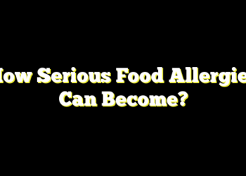 How Serious Food Allergies Can Become?